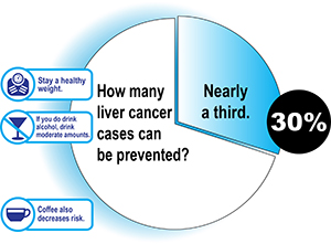 30% of liver cancers can be prevented