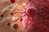 Colon Cancer Cell