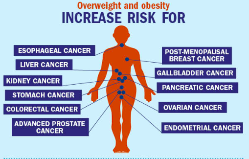 Obesity-Related Cancers